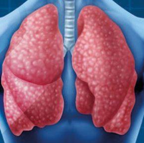 انواع بیماری های تنفسی