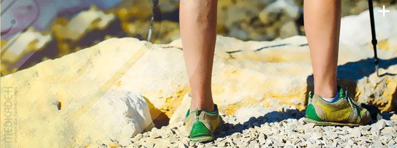 درمان واریس پا با پیاده روی