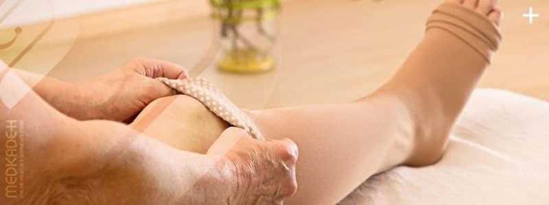 درمان واریس پا با جوراب واریس
