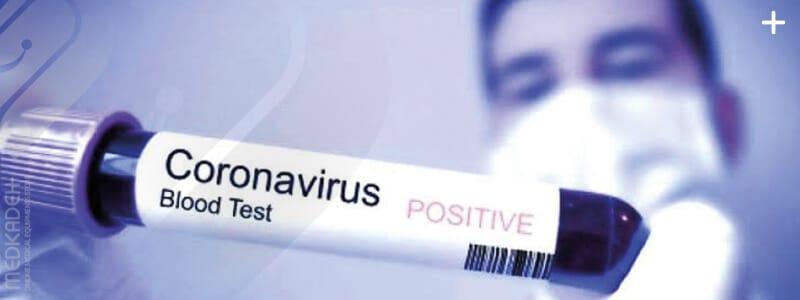 هر آنچه در رابطه با ویروس کرونا باید بدانید