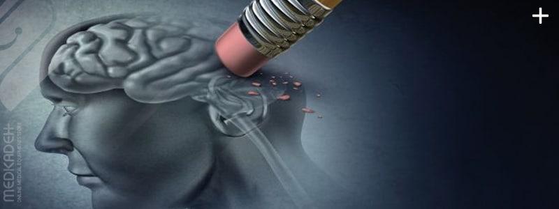 چه عواملی موجب بیماری آلزایمر میشود؟